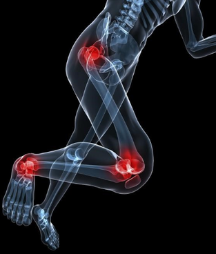 foot knee hippain - Why Symptoms of Foot, Knee and Hip Pain can be Misleading