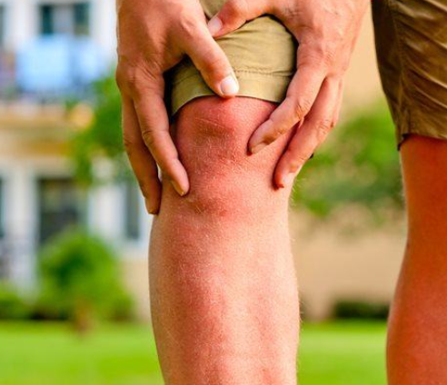 Knee pain matt - Learn About MME